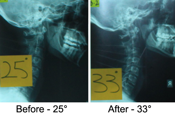Neck Pain X Ray Case Study